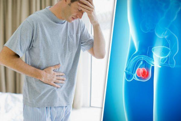 Cần cảnh giác với những hậu quả của viêm tinh hoàn