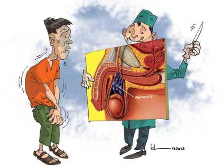 Cẩn thận kẻo vô sinh với chứng giãn tĩnh mạch thừng tinh