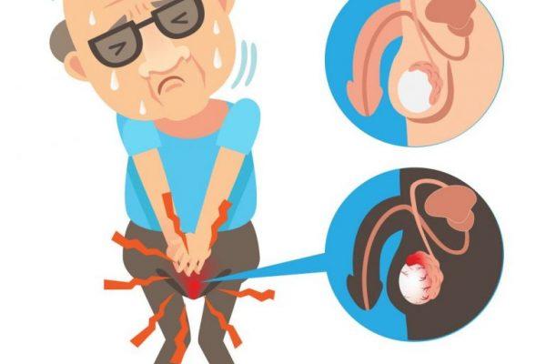 Viêm mào tinh hoàn là bệnh gì?