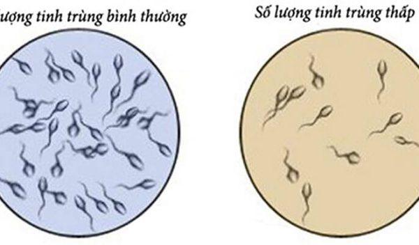 Tinh trùng ít có nguy cơ vô sinh ở nam giới không?