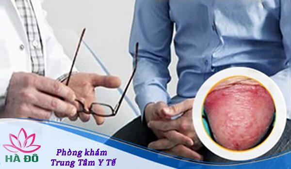 Cách chữa viêm bao quy đầu an toàn hiệu quả nhất hiện nay